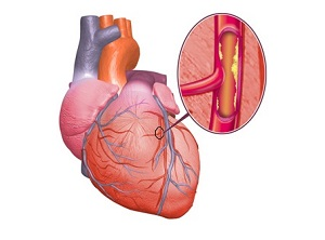 Операция на сердце при сахарном диабете