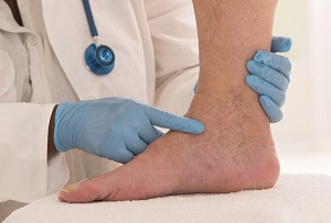 Лечение трофических язв голени при сахарном диабете