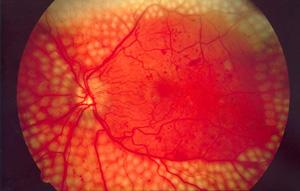 Осложнения, ухудшающие зрение при сахарном диабете