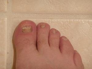 Грибок ногтей является серьезной проблемой для диабетиков