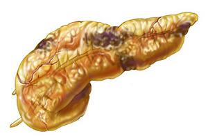 Лечение деструктивного панкреатита