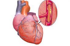 Сахарный диабет и ишемическая болезнь сердца
