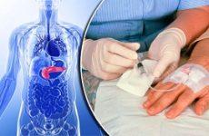 Первая помощь при панкреатите